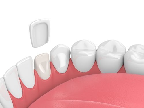 veneers, cosmetic dentist, Dentist Boston | Mayani Dental Boston