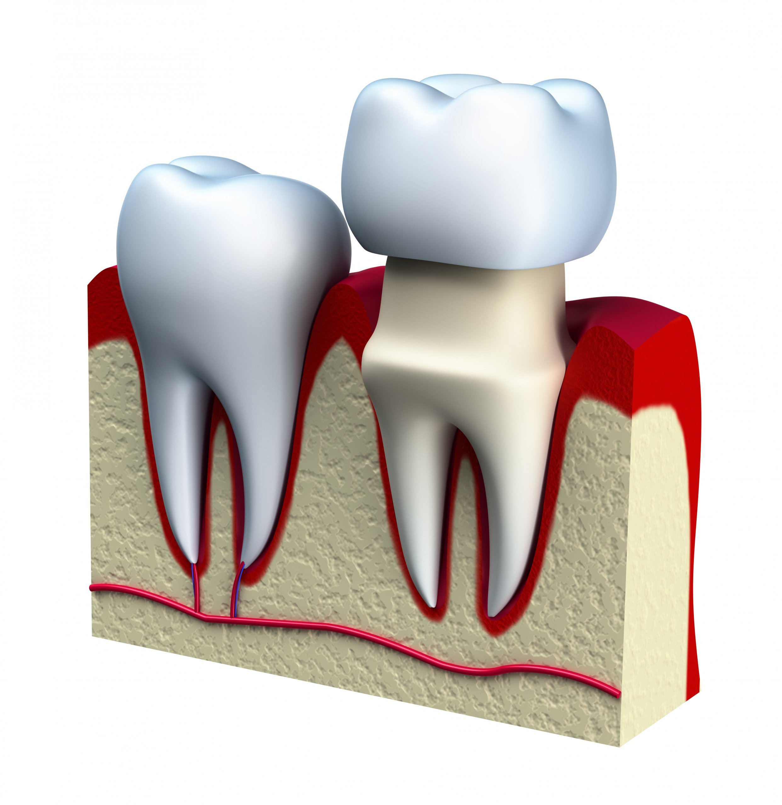 periodontal, Dentist Boston | Mayani Dental Boston
